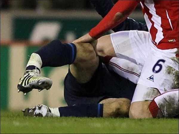 Những tai nạn bóng đá kinh hoàng trong lịch sử